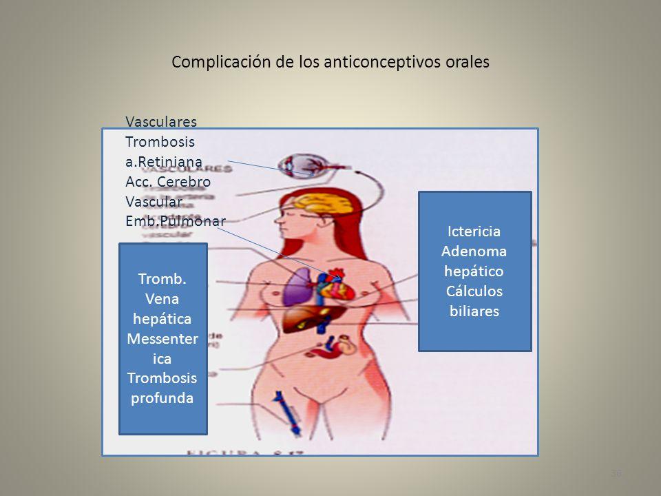 Complicación de los anticonceptivos orales
