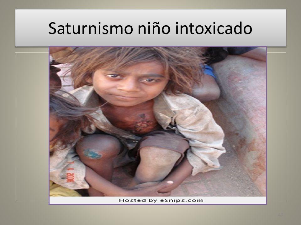 Saturnismo niño intoxicado