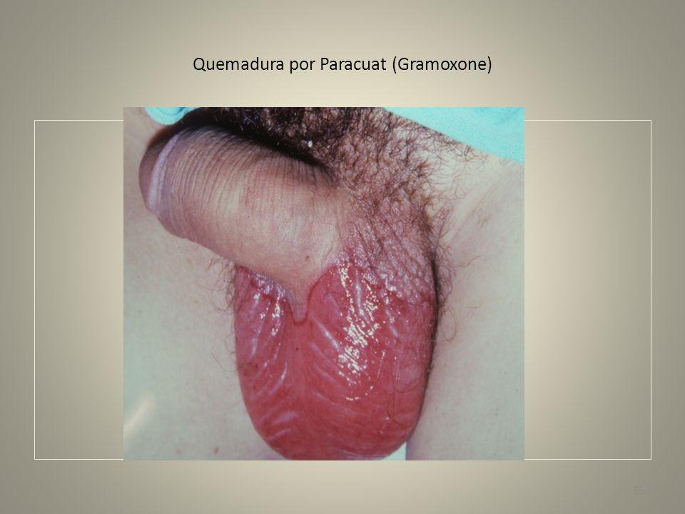 Quemadura por Paracuat (Gramoxone)
