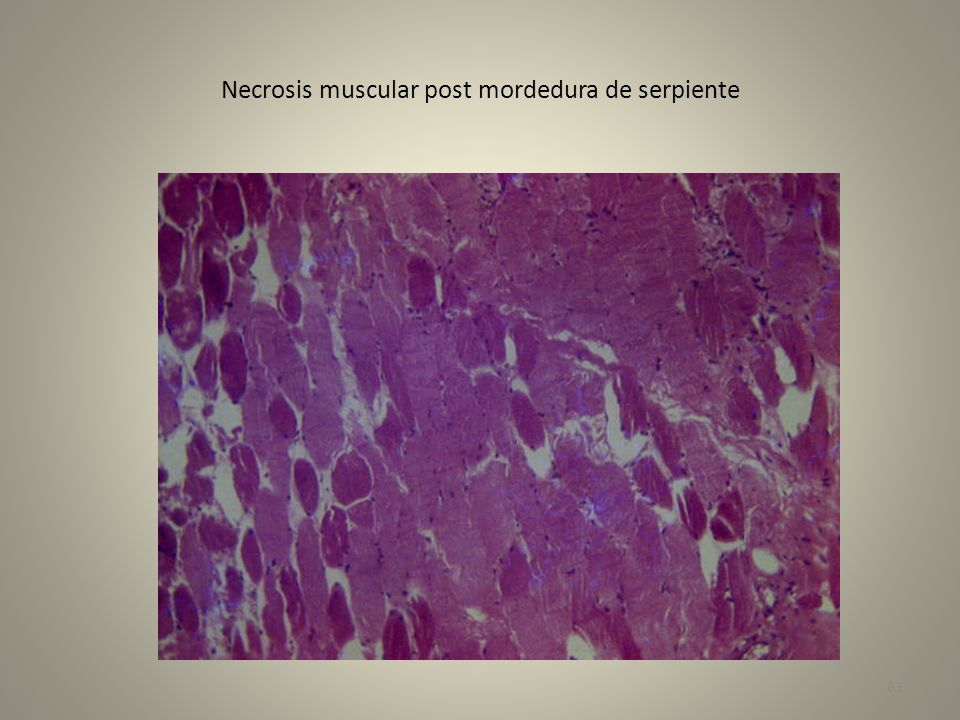 Necrosis muscular post mordedura de serpiente