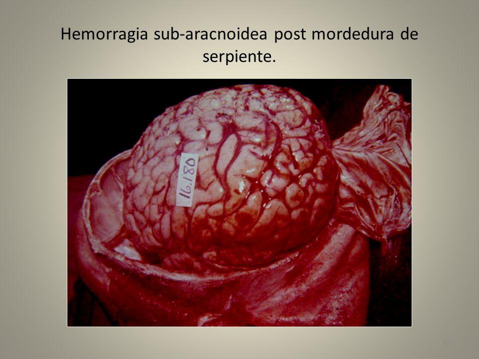 Hemorragia sub-aracnoidea post mordedura de serpiente.