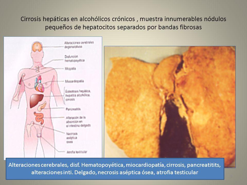 Cirrosis hepáticas en alcohólicos crónicos , muestra innumerables nódulos pequeños de hepatocitos separados por bandas fibrosas