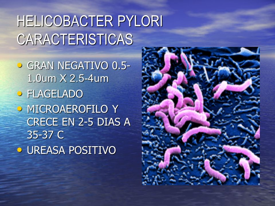 HELICOBACTER PYLORI CARACTERISTICAS