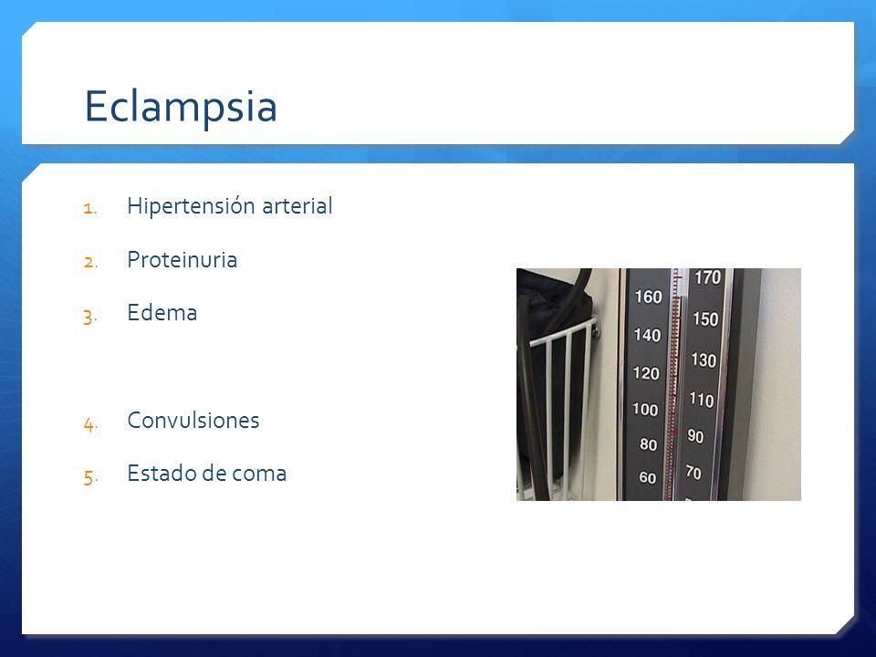 Eclampsia Hipertensión arterial Proteinuria Edema Convulsiones