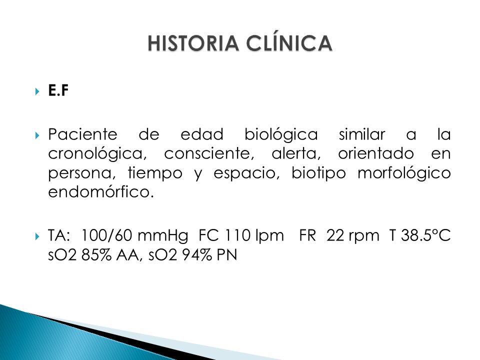 HISTORIA CLÍNICA E.F.