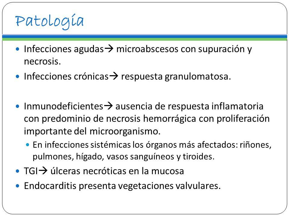 Patología Infecciones agudas microabscesos con supuración y necrosis.