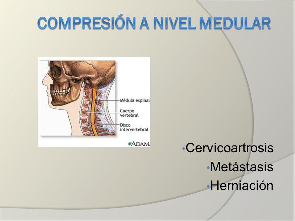 Compresión a nivel medular