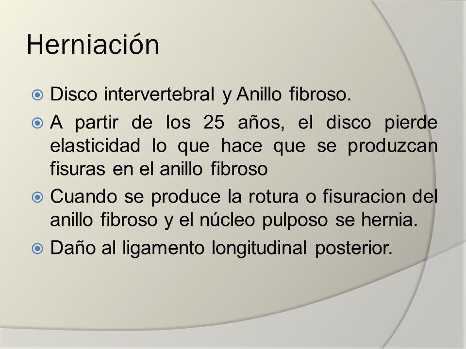 Herniación Disco intervertebral y Anillo fibroso.
