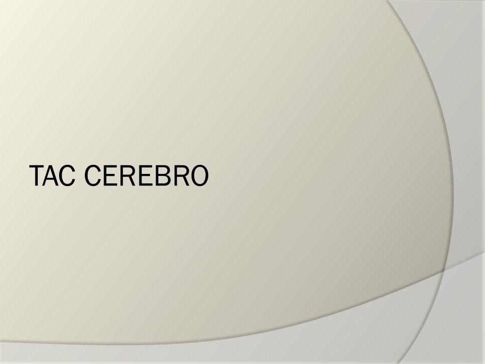 TAC CEREBRO
