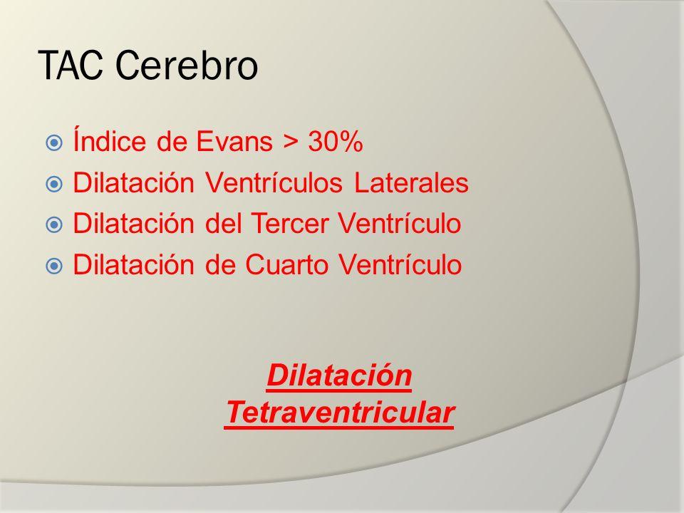 Dilatación Tetraventricular