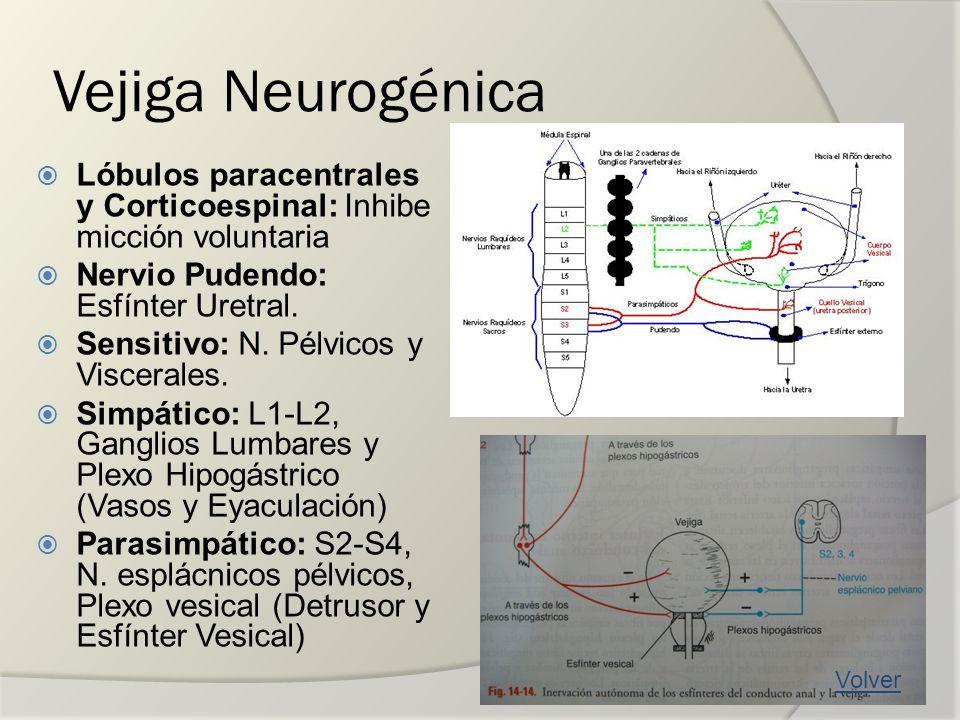 Vejiga Neurogénica Lóbulos paracentrales y Corticoespinal: Inhibe micción voluntaria. Nervio Pudendo: Esfínter Uretral.