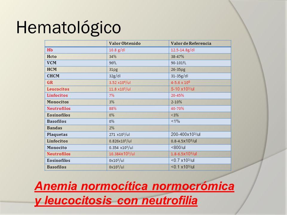 Hematológico Valor Obtenido. Valor de Referencia. Hb. 10.8 g/dl. 12.5-14.8g/dl. Hcto. 34% 38-47%