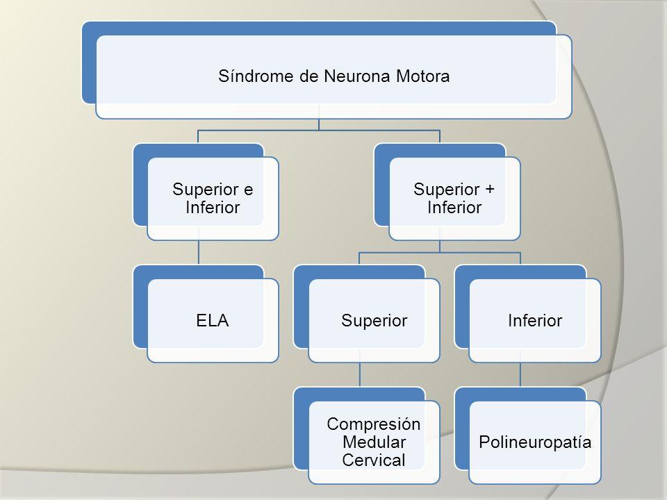 Síndrome de Neurona Motora