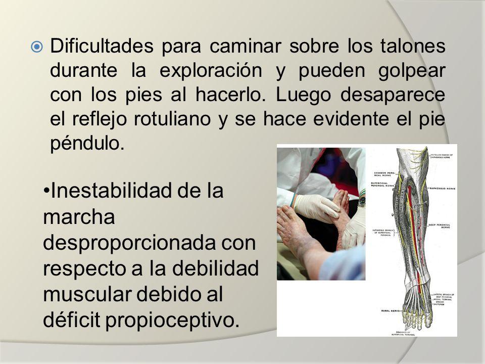 Dificultades para caminar sobre los talones durante la exploración y pueden golpear con los pies al hacerlo. Luego desaparece el reflejo rotuliano y se hace evidente el pie péndulo.