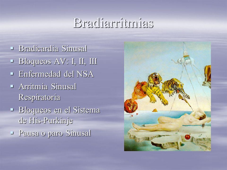 Bradiarritmias Bradicardia Sinusal Bloqueos AV: I, II, III