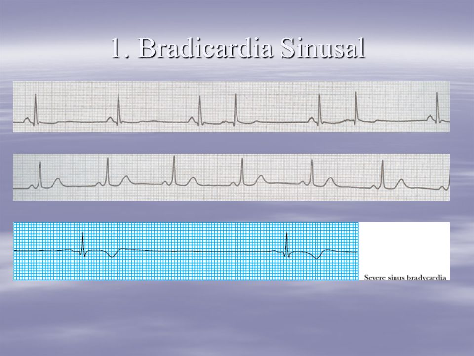 1. Bradicardia Sinusal