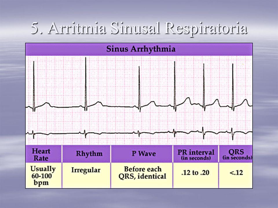 5. Arritmia Sinusal Respiratoria