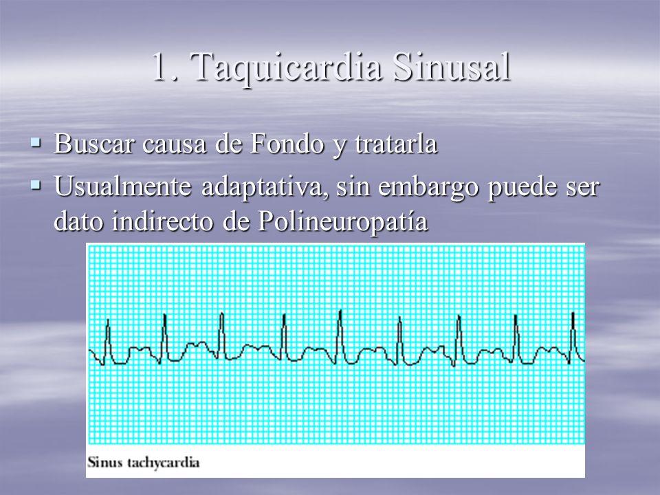 1. Taquicardia Sinusal Buscar causa de Fondo y tratarla