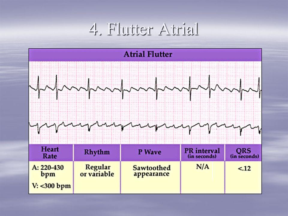 4. Flutter Atrial