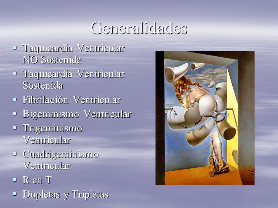 Generalidades Taquicardia Ventricular NO Sostenida