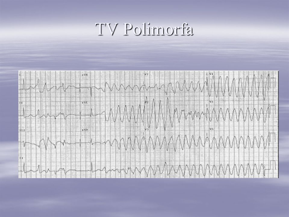 TV Polimorfa