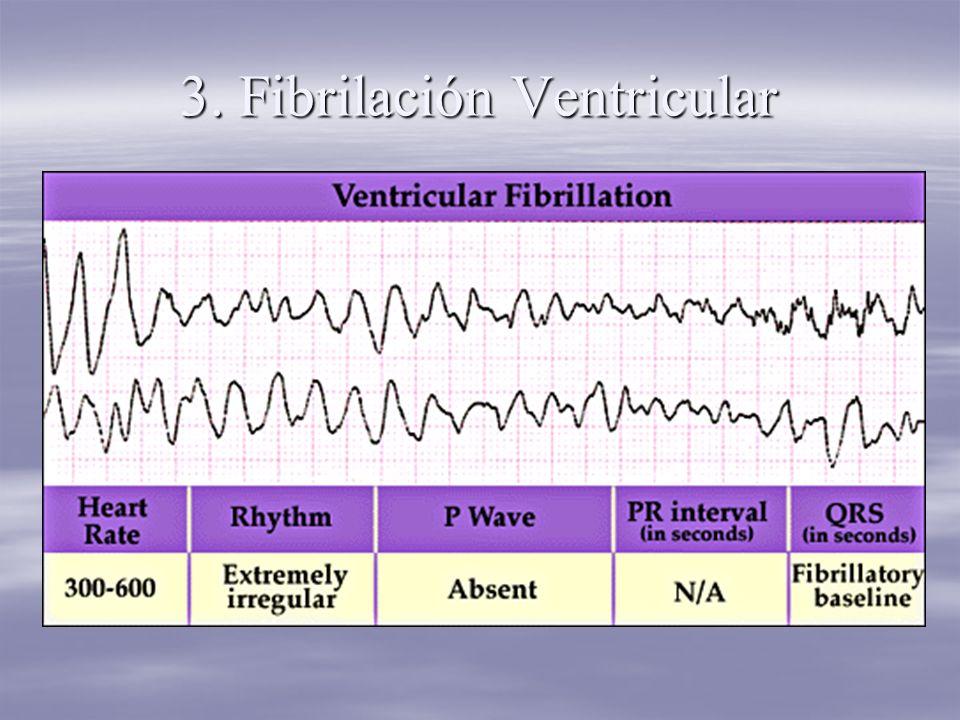 3. Fibrilación Ventricular