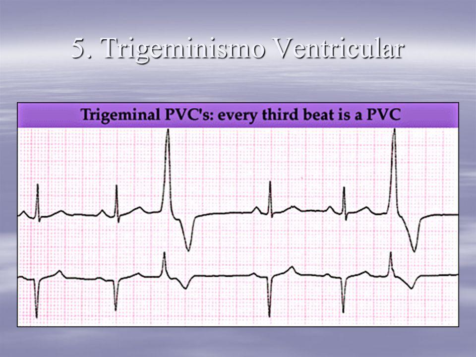 5. Trigeminismo Ventricular
