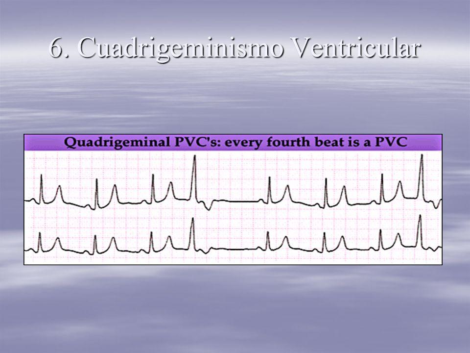 6. Cuadrigeminismo Ventricular