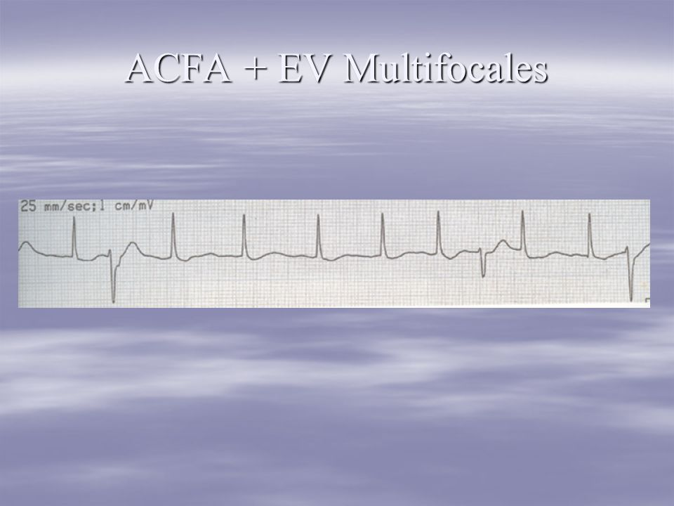 ACFA + EV Multifocales