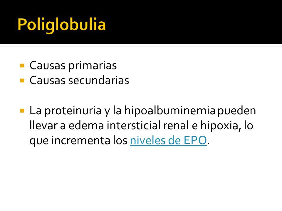 Poliglobulia Causas primarias Causas secundarias