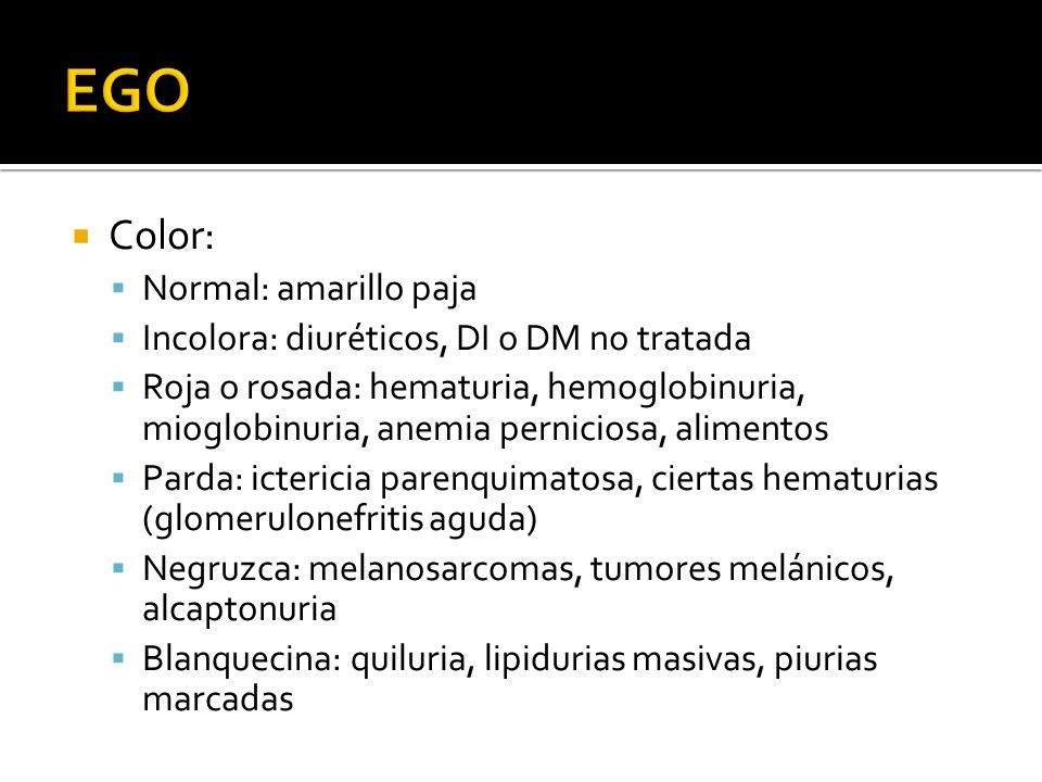 EGO Color: Normal: amarillo paja