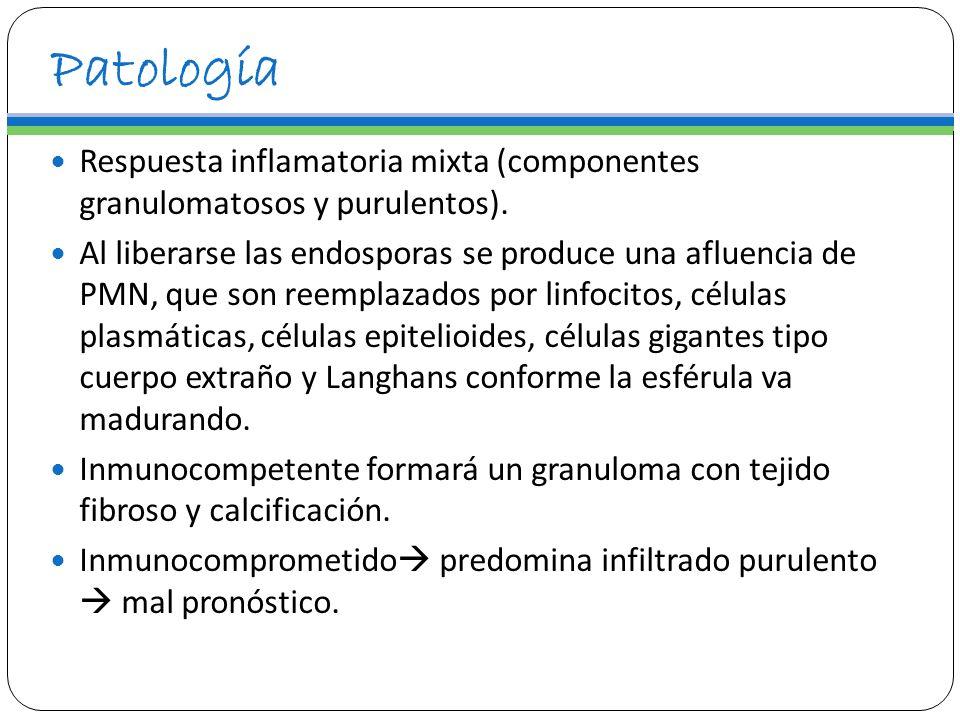 PatologíaRespuesta inflamatoria mixta (componentes granulomatosos y purulentos).