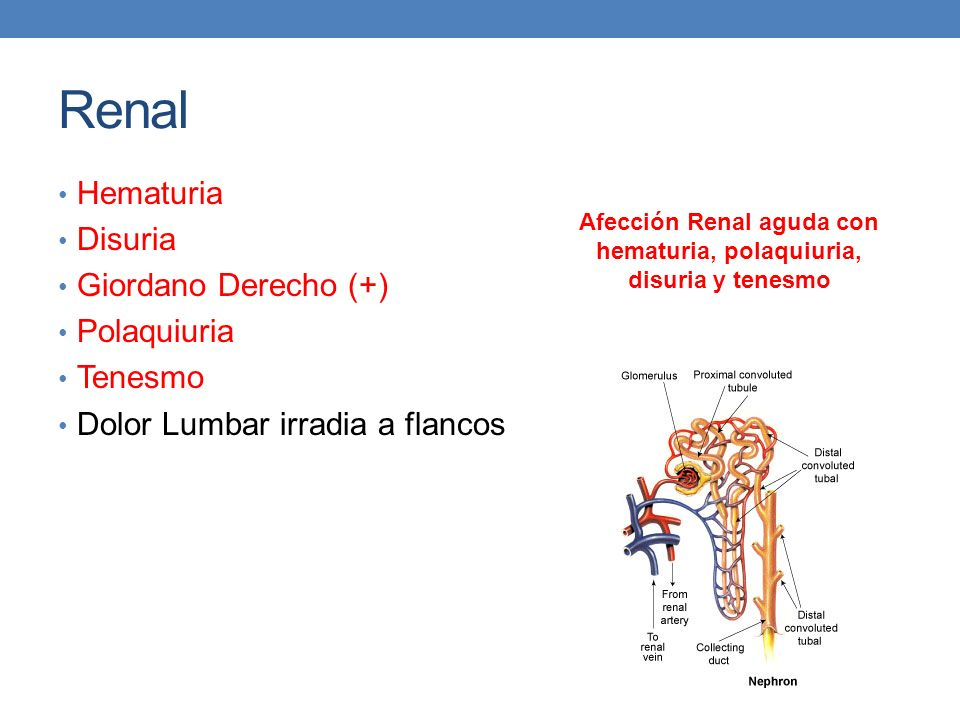 Afección Renal aguda con hematuria, polaquiuria, disuria y tenesmo