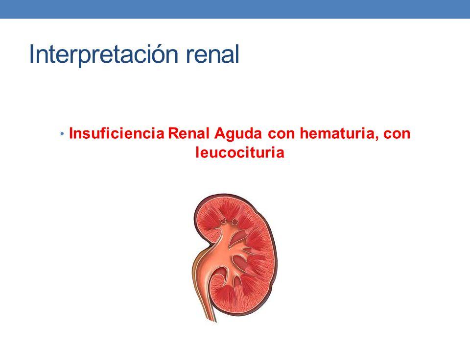 Insuficiencia Renal Aguda con hematuria, con leucocituria