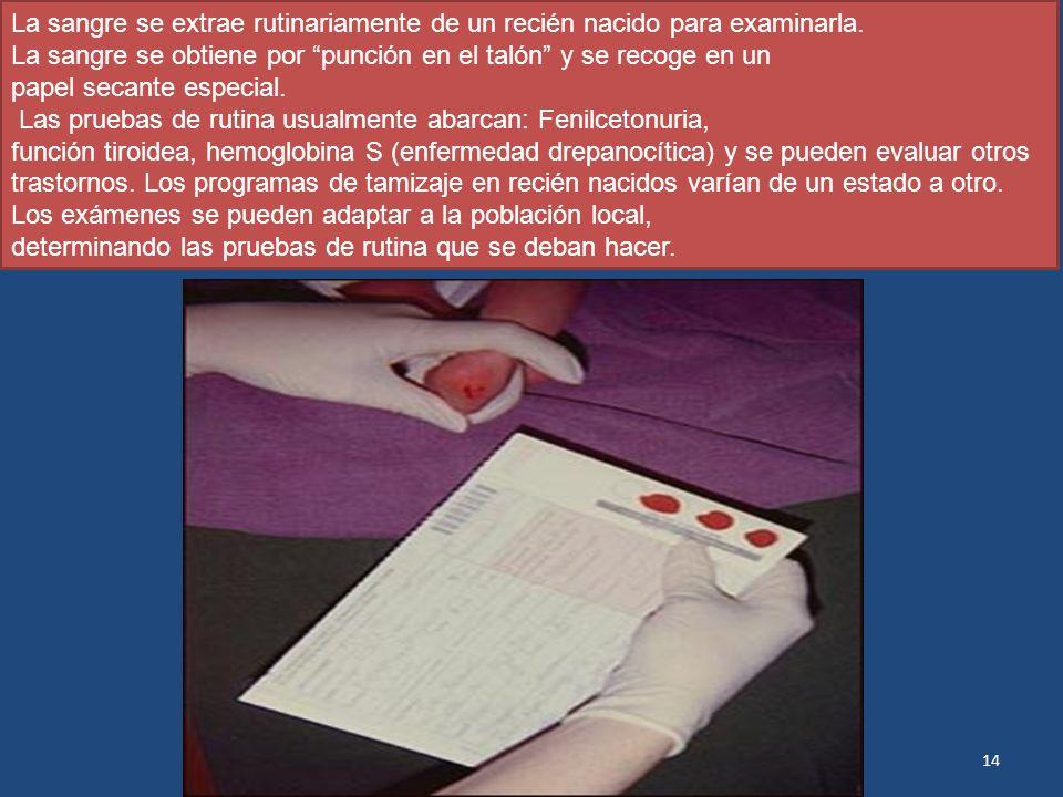 La sangre se extrae rutinariamente de un recién nacido para examinarla.