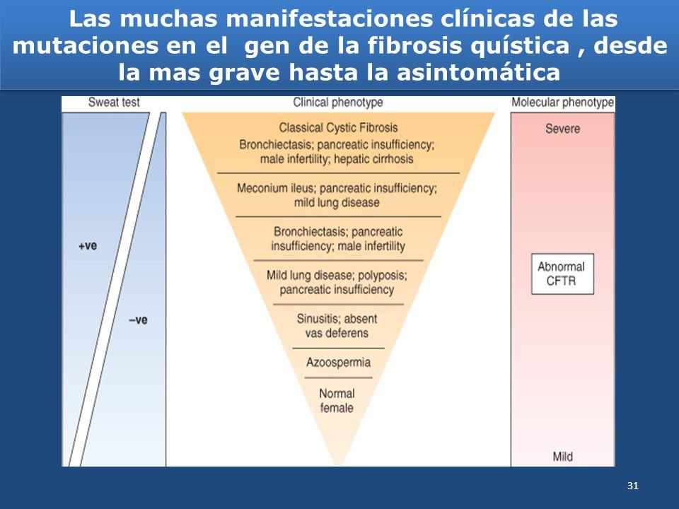 Las muchas manifestaciones clínicas de las mutaciones en el gen de la fibrosis quística , desde la mas grave hasta la asintomática