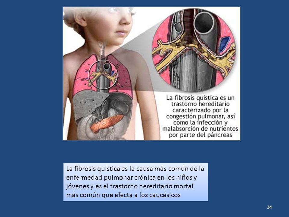 La fibrosis quística es la causa más común de la enfermedad pulmonar crónica en los niños y jóvenes y es el trastorno hereditario mortal más común que afecta a los caucásicos