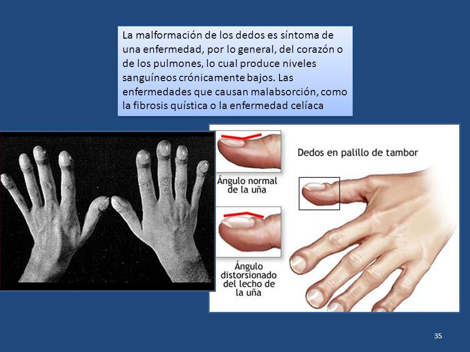 La malformación de los dedos es síntoma de una enfermedad, por lo general, del corazón o de los pulmones, lo cual produce niveles sanguíneos crónicamente bajos.