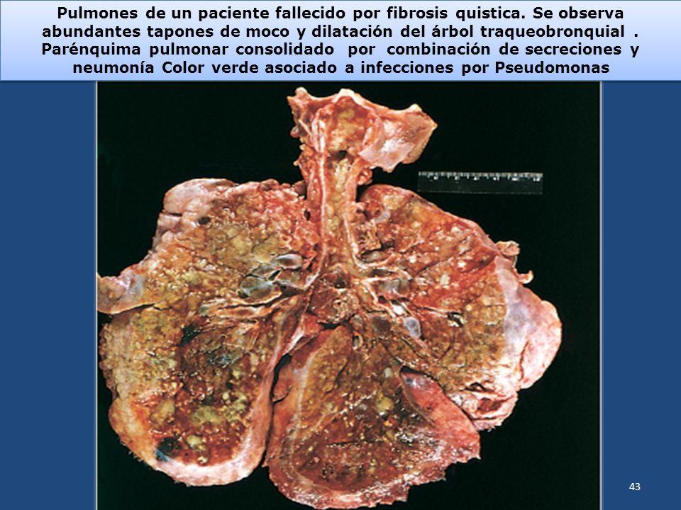 Pulmones de un paciente fallecido por fibrosis quistica