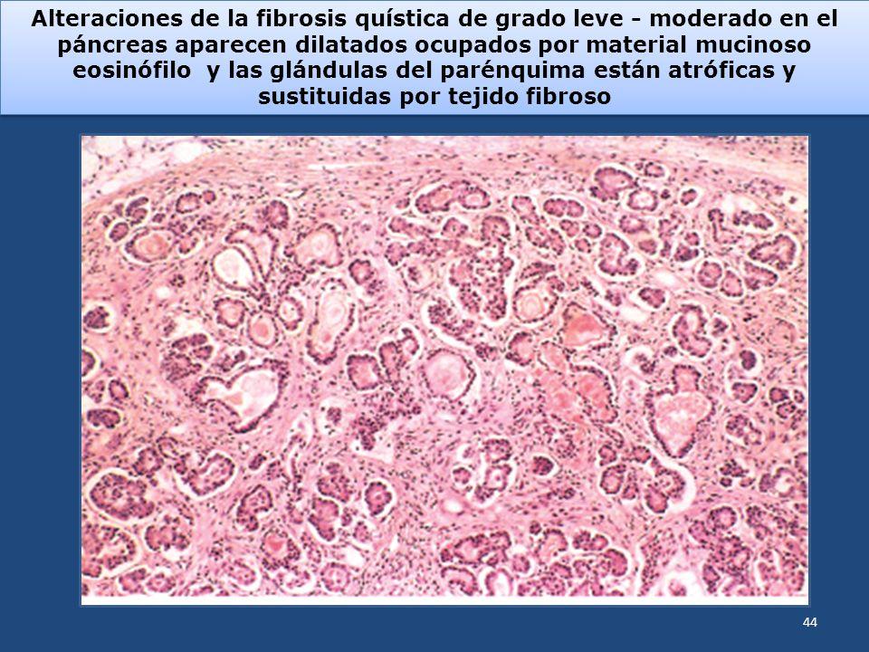 Alteraciones de la fibrosis quística de grado leve - moderado en el páncreas aparecen dilatados ocupados por material mucinoso eosinófilo y las glándulas del parénquima están atróficas y sustituidas por tejido fibroso