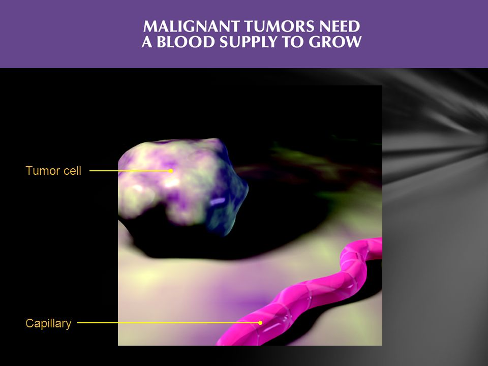 Tumor cell Without a blood supply, tumors typically do not grow larger than 1 to 2 mm1,2.
