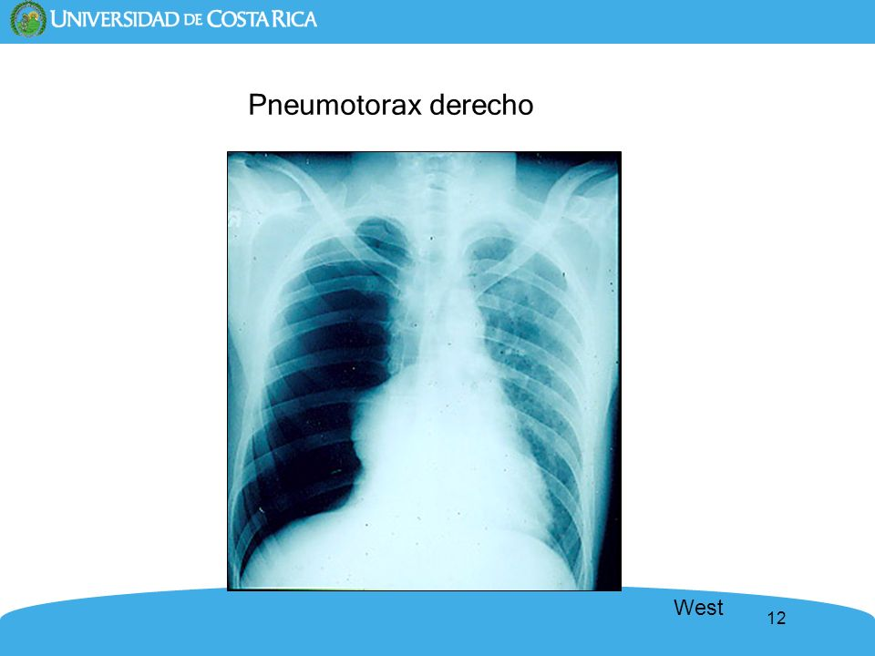 07-Mechanics.ppt Pneumotorax derecho West revised 1/9/04