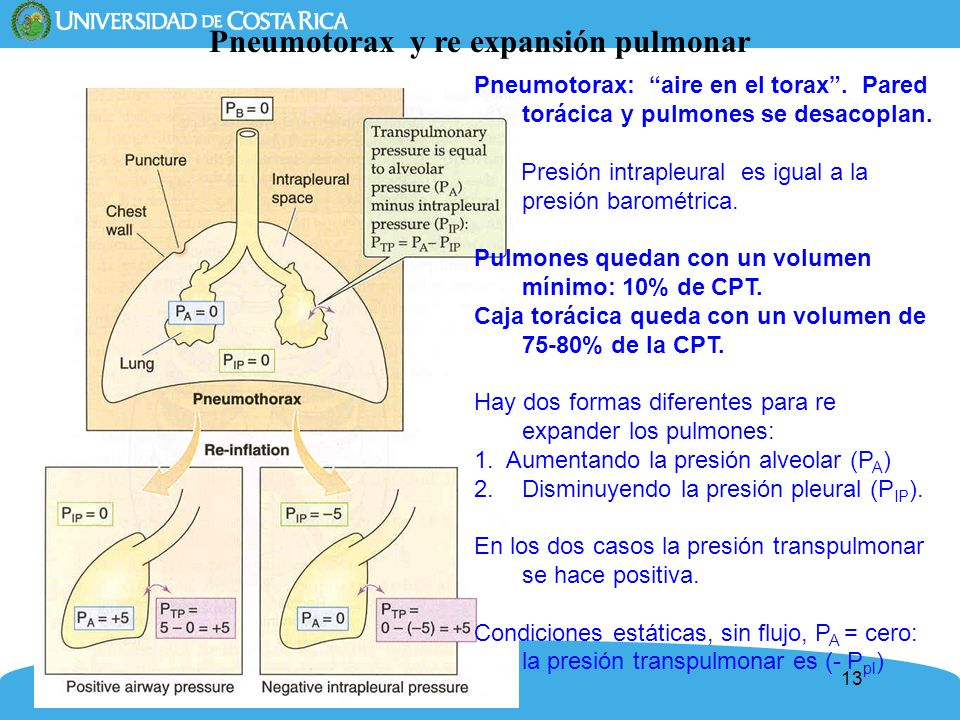 Pneumotorax y re expansión pulmonar