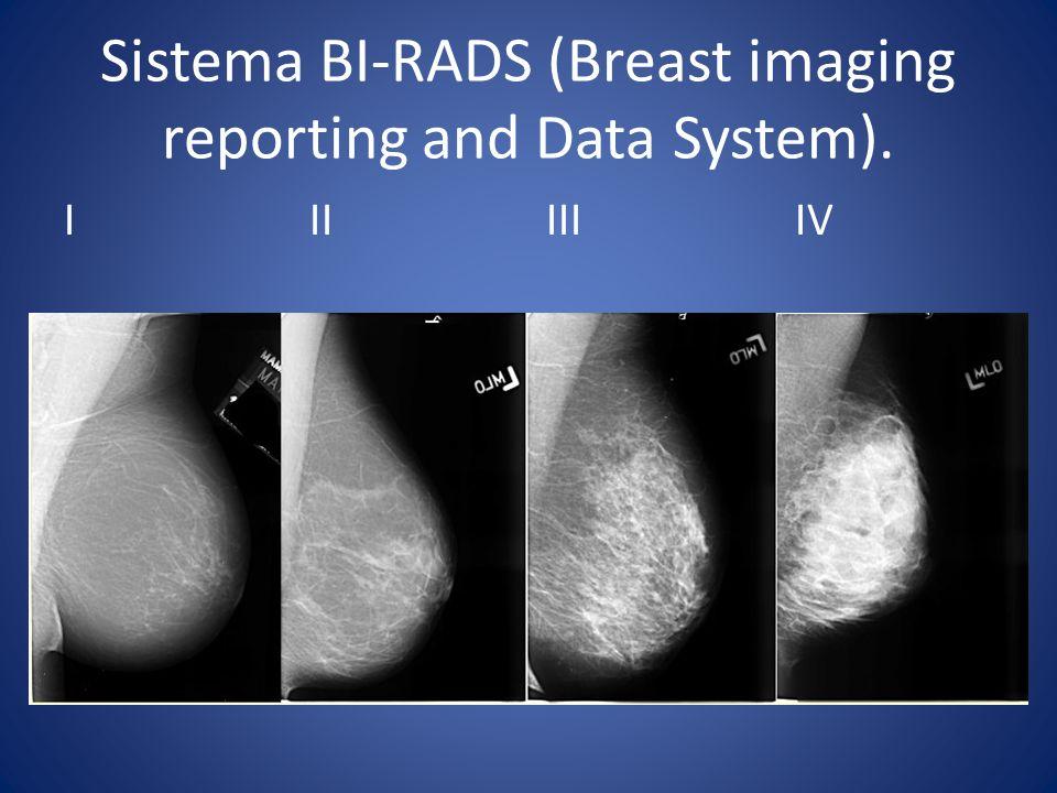 Sistema BI-RADS (Breast imaging reporting and Data System).