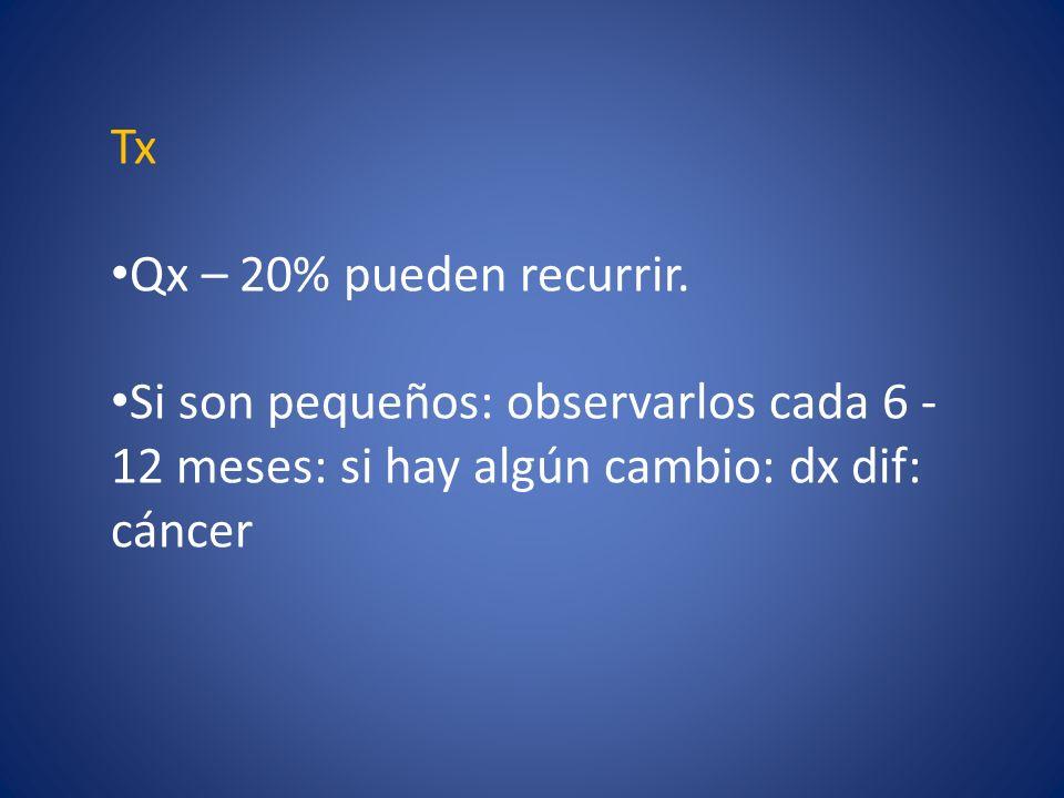 Tx Qx – 20% pueden recurrir.