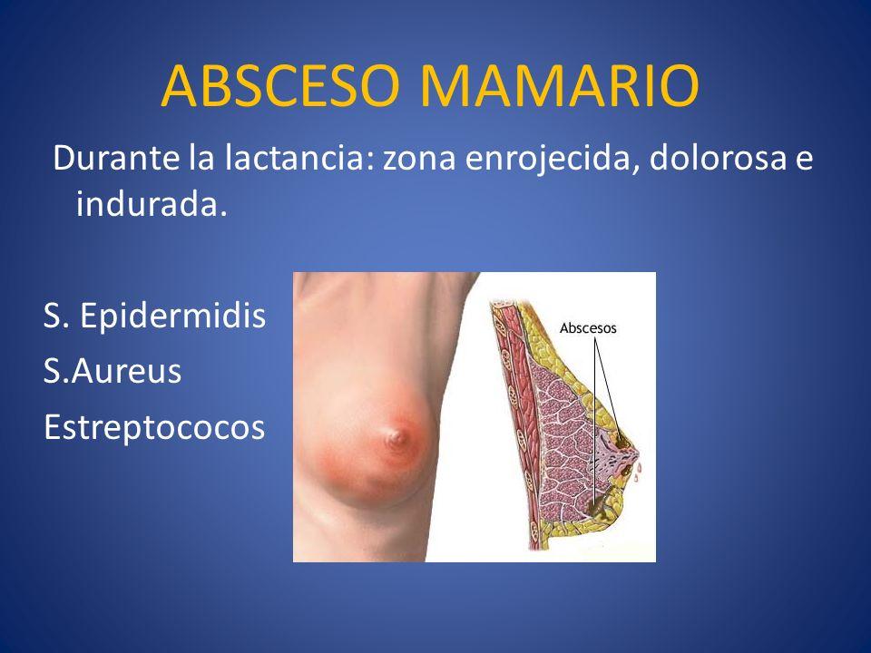 ABSCESO MAMARIO Durante la lactancia: zona enrojecida, dolorosa e indurada. S. Epidermidis. S.Aureus.
