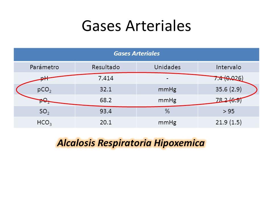 Alcalosis Respiratoria Hipoxemica