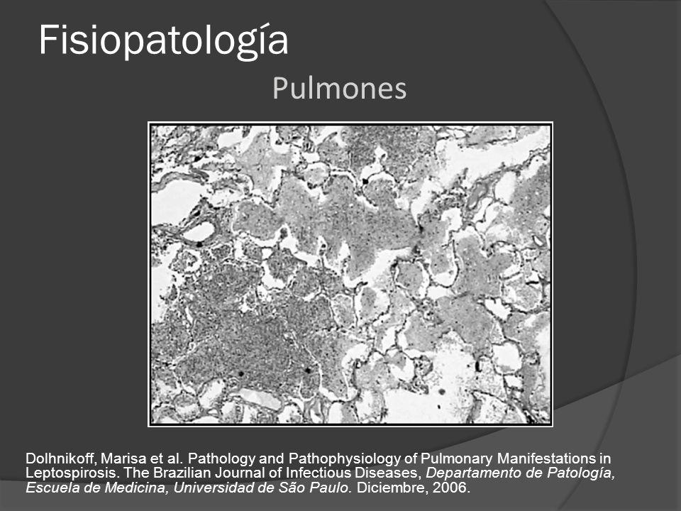 Fisiopatología Pulmones