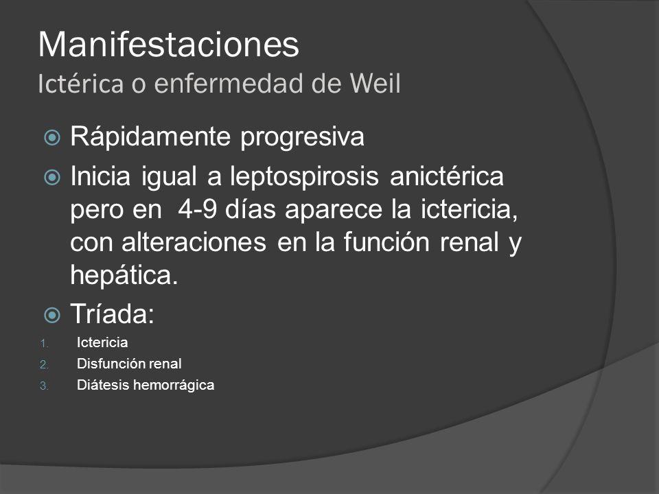 Manifestaciones Ictérica o enfermedad de Weil