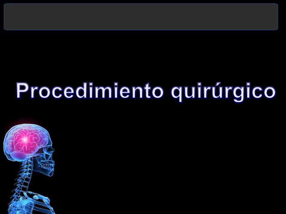 Procedimiento quirúrgico